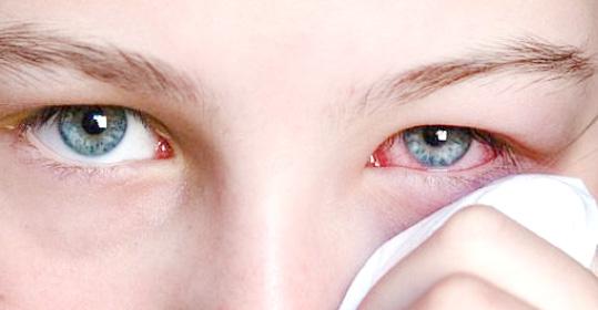 Есть подозрение на дакриоцистит? Спешите в клинику лазерной микрохирургии глаза!
