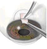 Микроинвазивная хирургия глаукомы